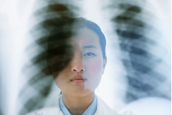 Screening Lung Cancer